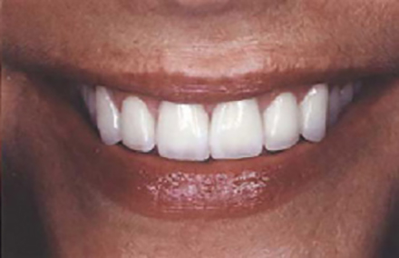 Woman with repaired dental damage smiling beautifully