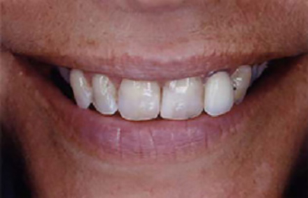 Woman with badly stained and damaged teeth