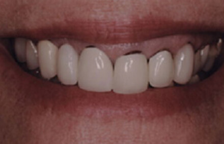 Woman's teeth darkened at the gum line