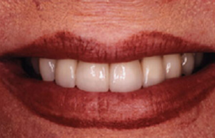 Smile with too-large unmatched dental crowns