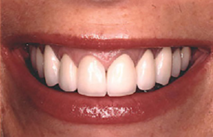 Smile corrected with crowns and gum therapy