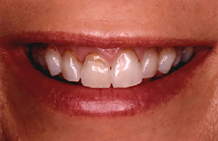 Smile with discoloration at the gumline