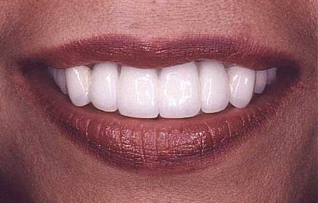 Woman after smile transformation with veneers and crowns