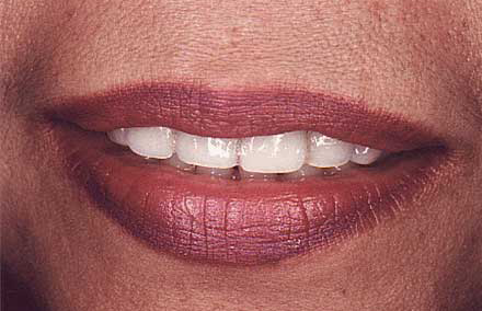 Woman with short discolored teeth
