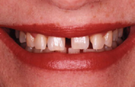 Smile with gaps and damaged teeth