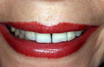 Woman with short front teeth with large gap