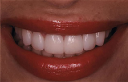 Woman's smile corrected with Empress veneers