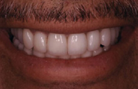 Corrected teeth with Empress dental crowns