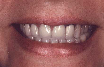 Dental crown with dark ring at top