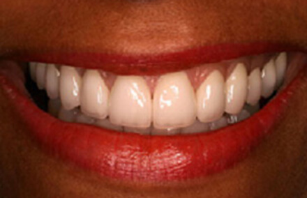 Woman's smile corrected with all-porcelain crowns