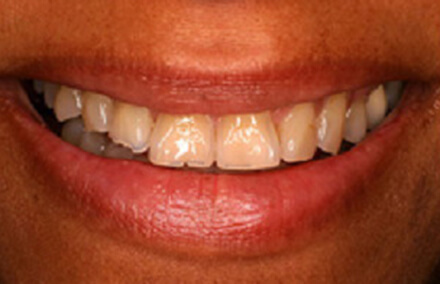 Woman's smile teeth pointed outward