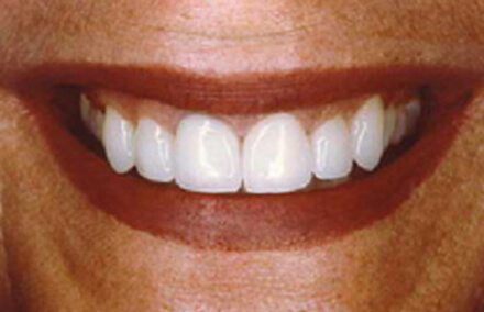 Same smile after treatment with veneers and crowns