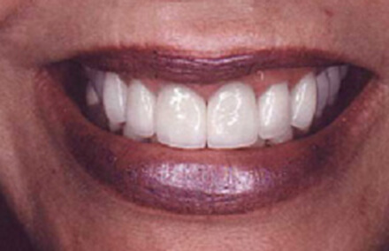 Close up of cosmetically treated smile
