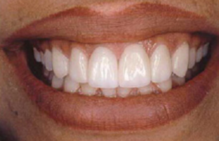 Repaired front teeth properly meet bottom teeth