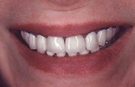 Badly treated teeth with unnatural looking crowns