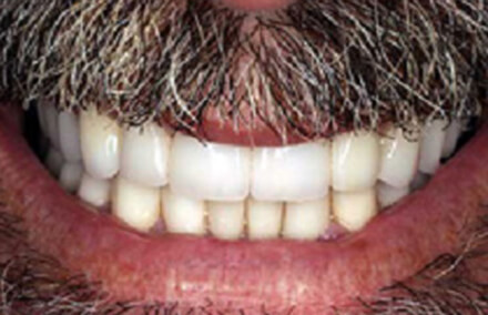 Stained teeth corrected with zirconia crowns