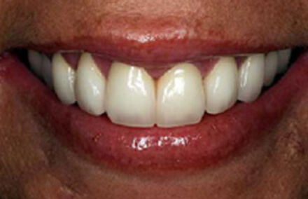 Discolored and worn front tooth repaired with crown