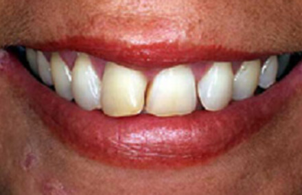 Smile with yellow damaged front tooth
