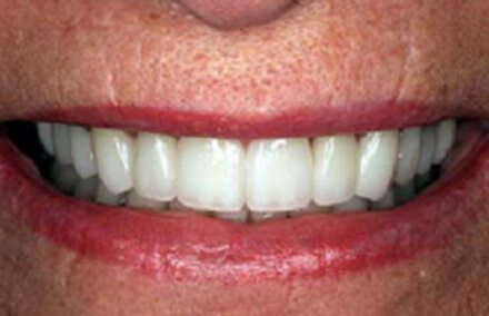 Woman's stained teeth corrected with zirconia crowns