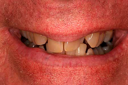 Man with yellowed damaged and crooked teeth