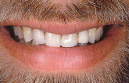 Man's discolored smile with damaged dental bridge