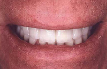 Corrected irregular tooth sizing with eight veneers