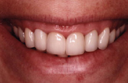 Zirconia crowns and veneers concealing dental stains
