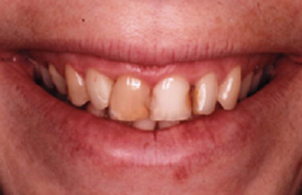 Severely decayed and discolored front teeth