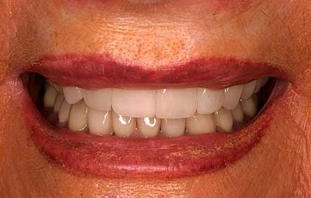 Dark teeth concealed with crowns and veneers