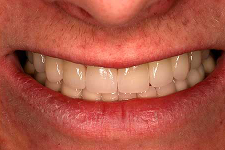 Smile repaired with crowns and bridges