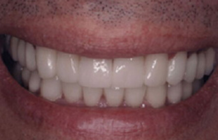 Flawless looking zirconia crown repaired teeth
