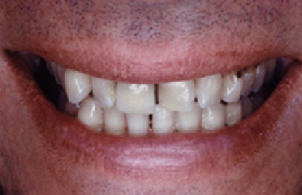 Unevenly spaced stained teeth