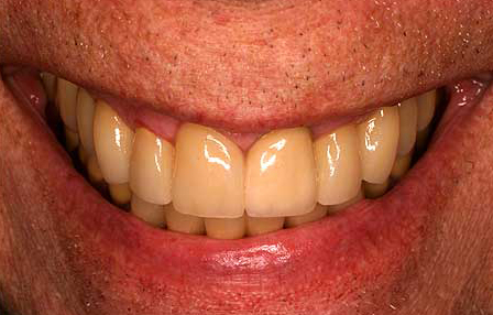 Bite repaired with zirconia crowns