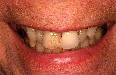 Discolored teeth and poorly fitting bite
