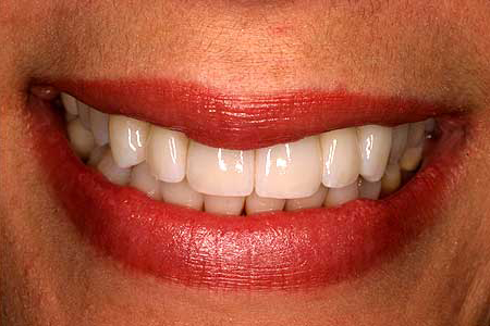 Bright white smile after zirconia restoration