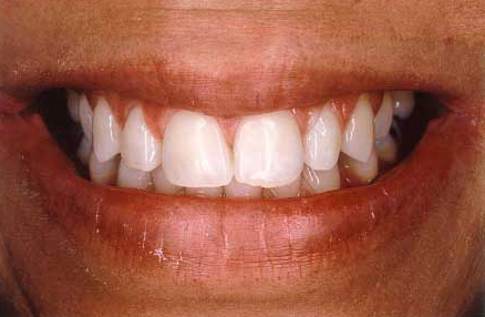Dramatically brighter smile following teeth whitening