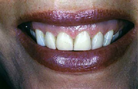 Smile with four older discolored veneers