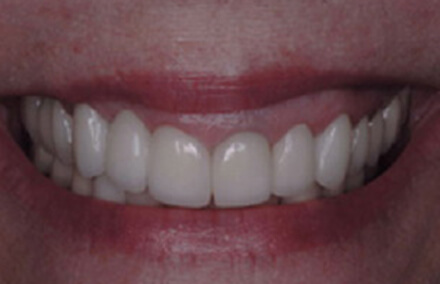 Teeth repaired with natural looking Empress resotrations