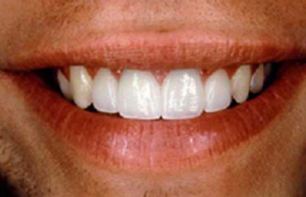 Flawless and evenly sized teeth after smile makeover