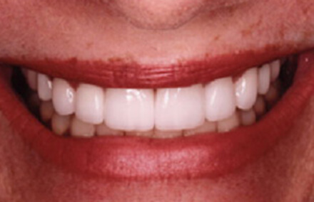 Beautifully restored smile using Empress restorations