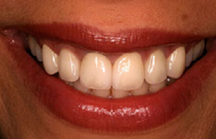 Woman's beautiful smile with Empress veneers
