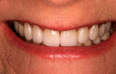Picture-perfect smile following Empress veneer placement