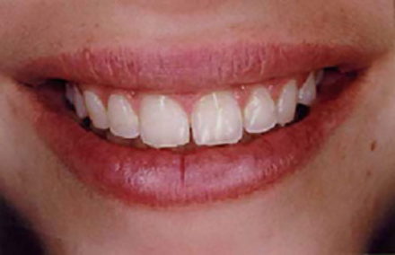 Smile with wear and a gap between front teeth