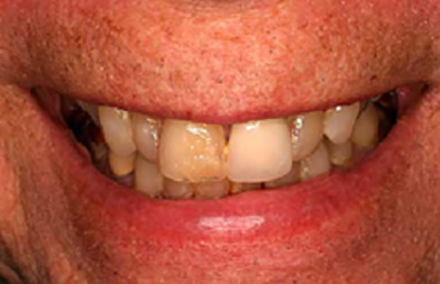 Discolored smile with damaged left tooth