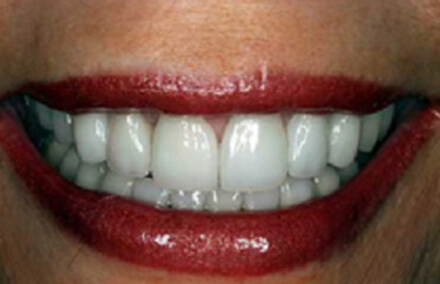 Two front teeth reshaped with porcelain-to-gold crowns