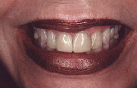 Darkly stained teeth with aging dental restorations