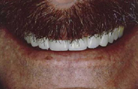 Man's smile corrected with veneers and crown