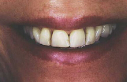Woman with discolored and unnatural looking veneers