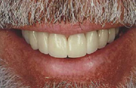 Man's smile beautiful repaired with Empress veneer-crowns