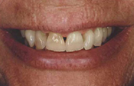 Worn and discolored smile with large gaps